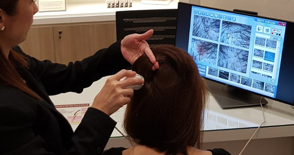 Scalp Analysis
