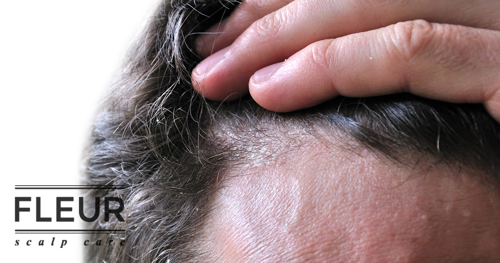 Scalp Eczema Treatment